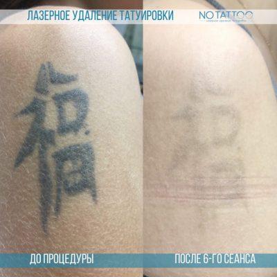 lazernoe-udalenie-tatuirovky-1024x1024