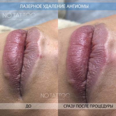 ангиома губы
