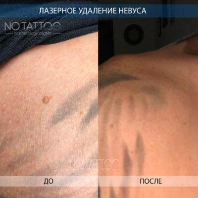 невус1