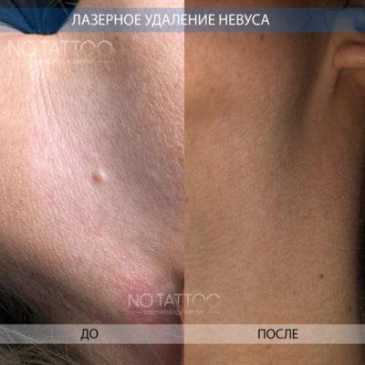 невус2