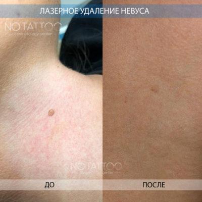 невус3